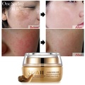 Moisturizing Face Cream ลบอายุ Spot Scar Pigment Whitening Anti Wrinkle Cream Beauty Miracle Glow Day & Night Cream