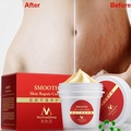 I-Cloud Scar Removal Repair Cream Smoothing Cream Stretch Marks Cream