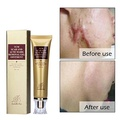 Acne Scar Removal Cream Face Skin Repair Cream Treatment Scar Gel for Relief and Burns Repair (30ml)