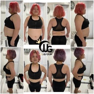 Woohslim No Effect! On Onedayslim Needle For Slimming Anti Back No Effects