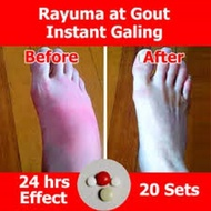 BUY 1 TAKE 1Arthritis | Rayuma | Gout Relief 10 Sets, Arthritis Medicine, Arthroneo, gloves, spray, patch, slippers, socks, gout medicine, gout cream, gout relief, gout out, gout support, goutrin, gout supporter, gout and you, gout supplement