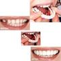 美國仿真牙齒牙套snap on smile 上下排假牙套  美白牙貼 仿真上排牙齒美白假牙套