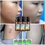 芊茗草兒童無痕修復精油 身體護理祛疤精油 修護受損肌膚廠家直銷