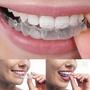 訂製牙齒保護牙套隱形矯正器透明保持器夜磨牙套牙縫大外凸不齊 英雄聯盟