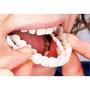 假牙套 仿真牙齒牙套 美白牙貼 仿真美白假牙套 上+下排 盒装