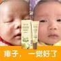 gpoint#熱賣中嬰兒去痱止癢膏熱痱子膏新生兒痱子膏寶寶袪痱水成人痱子粉