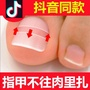 【奇葩小店】正品正甲貼甲溝嵌甲矯正器腳趾甲矯正貼片專用指甲修腳刀鉗套裝炎