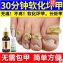 灰指甲專用液軟甲膏貼抑菌液藥去除增厚腳趾亮甲液正品灰甲凈官網